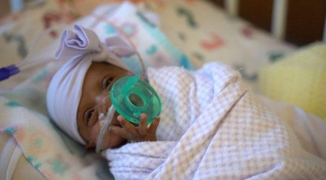 Najmanja prerano rođena beba na svijetu stigla kući