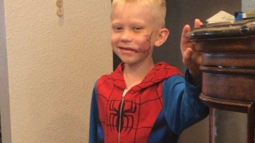 Mali heroj kojem se divi cijeli svijet! Spasio sestru od bijesnog psa!