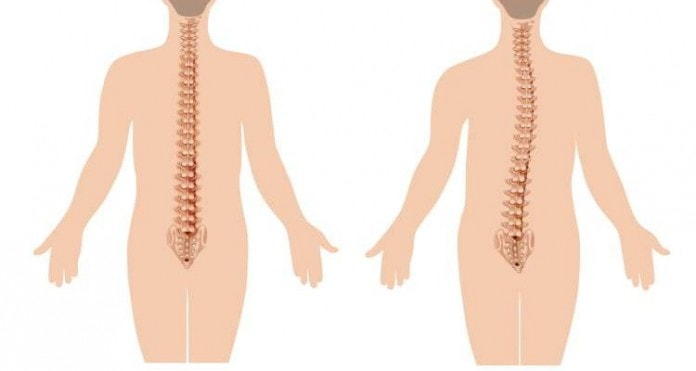 Naučite da se borite protiv osteoporoze