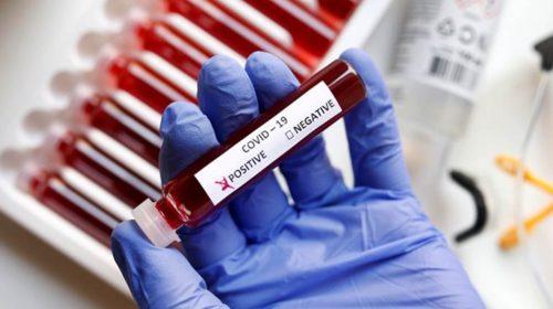 Obezbijeđena vakcinacija za privrednikre