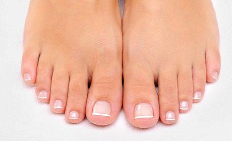Za lijepe nokte: Kako da se oslobodite gljivica na noktima